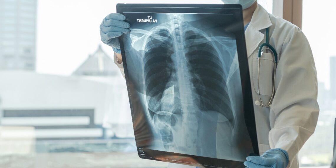 tele-radiology malpractice