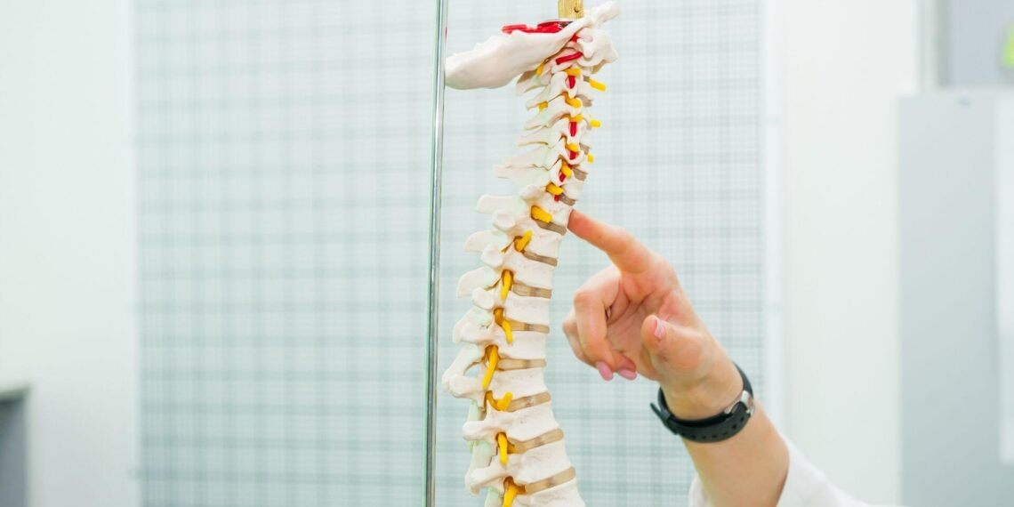 Doctor pointing at Spinal Cord Catastrophic Injury