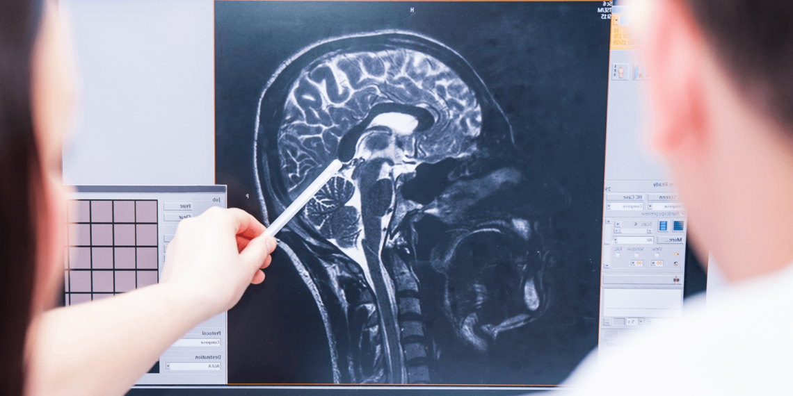 CT scan of brain injury in Eugene, OR